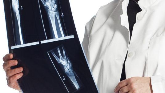 Lääkäri tutkii röntgenkuvaa