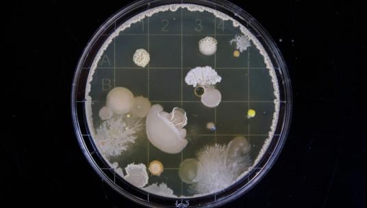 bakteerit mikroskoopissa